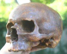 Human Skull Iron Hamlet Anatomical Medical Death Mask Oddity Gothic Mummy Gift