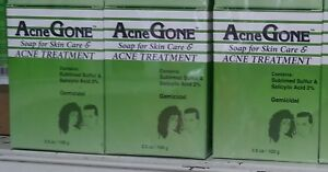 (Pack of 3) Acne Gone Soap for skin care & Acne Treatment 3.5oz/100g