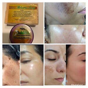 Instawhite Cream Whitening Dark Spot Melasma Soap Best Seller 100% Effective