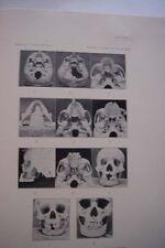 JAWS TEETH ANCIENT HAWAIIANS 1927 First Edition Hawaii Dentistry Charts Data