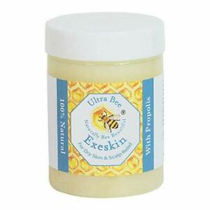 100% Natural Exeskin Dry itchy Skin Balm suitable for People Prone to Eczema