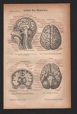 Litografía 1876: cerebro del ser humano. cráneo-cápsula cabeza
