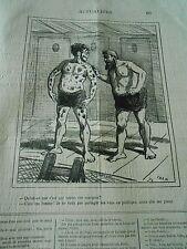 Caricature 1877 - Toutes ces marques sur le corps C'est ma femme qui me pince