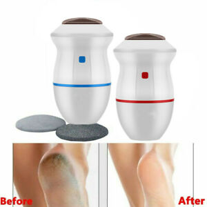 Electric Vacuum Adsorption Foot Grinder Exfoliate Dead Skin Remover Pedicure Kit