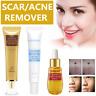 LanBeNa Acne Scar Removal Cream Skin Repair Face Cream Acne Spot Treatment Serum