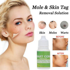 10ml Facial Clean Wart Treatment Mole Remover Foot Corn Removal Skin Tag Remover
