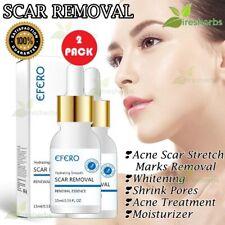 Skin Essence Scar Stretch Mark Removal Whitening Acne Pores Treatment Serum 30ml