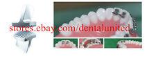 10pcs Dental Orthodontic Bite Turbos Opener Bite-Builder Wings Tongue Tamers