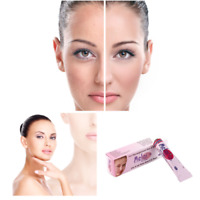 2 X MELAS CREAM FOR REMOVES PIMPLE & HYPER PIGMENTATION MARKS ON FACE 10 GM EACH