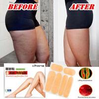 jambe cuisse abdomen Santé Tissu adipeux Adipeux Combustion Patch Autocollant