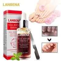 LANBENA Fungal Nail Treatment Feet Care Essence Removal Fungus Healthy Repair