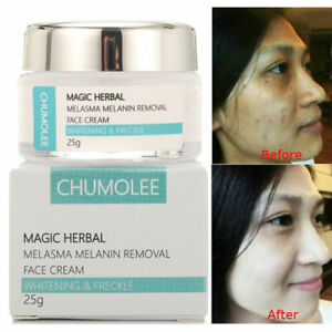 NEW Strong Whitening Cream Freckle Removal Speckle Melasma Spots Melanin Pigment