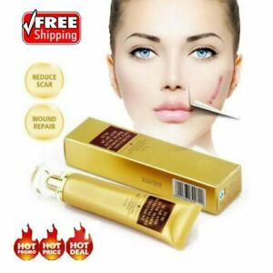 30g TCM SCAR AND ACNE MARK REMOVAL GEL OINTMENT Acne Scar Cream DM