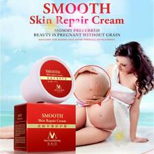 Maternity Smooth Skin Cream Stretch Mark Scar Removal Postpartum Repair Cream