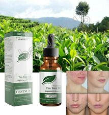 Natural Tea Tree Essential Oil Anti-wrinkle Scars Marks Acne Removal Skin Care