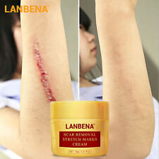 LANBENA Stretch Mark Removal Cream Pregnancy Scar Repair Face Acne Treatment 40g