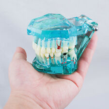 Dental Study Teeth Model Transparent Adult Pathological Disease Tooth Dentistry