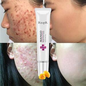 Crema Tratamiento Para ACNE Cicatrices Y Espinillas Limpia TU ROSTRO Facilmente!