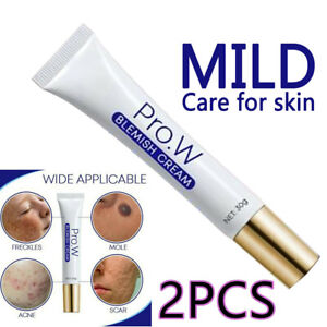 NEW Pro.W Blemish Cream Spots Removal Treatment Pimple Ointment Scar Mark HOT
