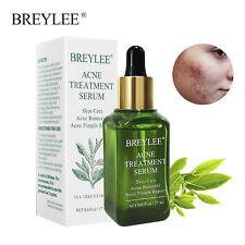 BREYLEE Acne Treatment Serum Scar Removal Serum Facial Essence Cream Skin Care