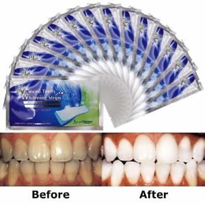 Teeth Whitening LED Light & Whitening Strips Kit, Be Dentist By Yourself