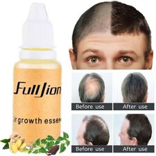 Hair Growth Essence Products Essential Oil Liquid Treatment Preventing Hair Care