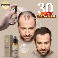 Miracle 30 Days Instant Hair growth Spray Fast Hair growing Treatment Natural