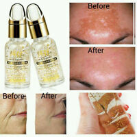 Hyaluronic Acid 24kt Gold The Best Anti Ageing Wrinkle And Face Whitening Serum