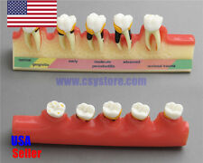 Dental Model #4010 01 - 5-Stage Periodontitis Model