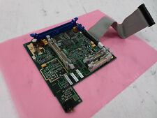 Hp M1350 Digital Interface Control Board For M1350 Fetal Monitor M1350 66415