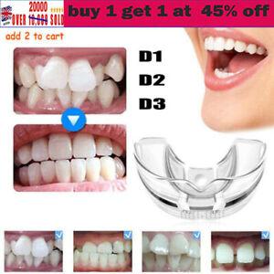 3 Stage Dental Orthodontic Teeth Corrector Braces Tooth Retainer Straighten Tojh