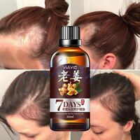 NEW!Fast Hair Growth Dense Regrowth Ginger Serum Oil Anti Loss Treatment Essence