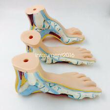 set of 3 pcs Normal Flat & Arched Foot Models anatomical model medical training