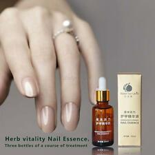 Anti Fungal Nail Treatment Essence Toe Nail Finger Fungus Infection Cure 30ML