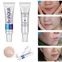 Skin Anti Acne Scar Blemish Stretch Marks Removal Face Cream 30g