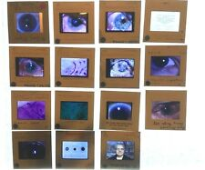 Vtg Lot of 15 Warning Graphic Teaching Photo Slides Eye Doctor Medical Lot E15