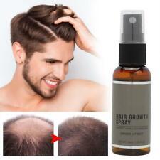30ml Miracle Rapid Hair Growth Essence Spray Fast Preventing Hair Loss Spray