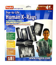 Human X-Rays Roylco True-to-Life Skeleton Teacher Homeschool Science Medical