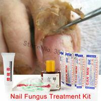 Herbs Toe Nail Fungus Treatment Anti Fungal Nail Infection Essence Nail Treatmen