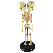 Deluxe Siamese Twin Conjoined Fetus Skeleton Oddity Curiosity Rare Circus Gaff