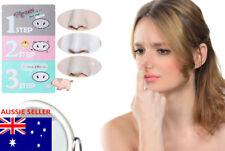 1 Holika 3-Step Blackhead Remover Clean Pore Mask Facial Strip Peel Clean Acne