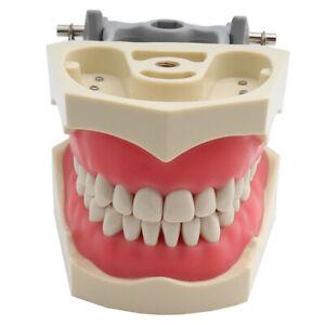 ADC Dental Teeth Model Teaching Model Demonstration Model 32pcs Screw-in Teeth