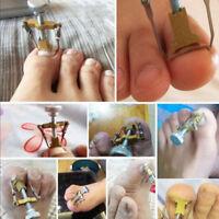 Ingrown Feet Toe Nail Recover Correction Pedicure Toenail Fixer Foot Care Tool
