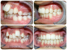 Straight Teeth System for Teens &Adults retainer to correct orthodontic problems