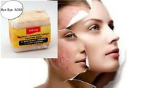 SOAP Calendula Marigold ACNE,Pimples, Antiseptic & Anti-inflammatory action,60g.