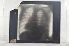 "Chest X-Ray Magic Lantern Glass Slide Photo ""Cole"""
