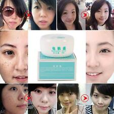 Magic Face Freckle Dark Spots Removal scar Cream Clean Pigment Whitening Hot