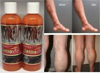 2 VARICOSE SPIDER VEIN TREATMENT GEL FLAMAXIN VARICES  VEINS CREAM