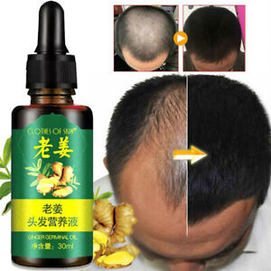 30ml Ginger Germinal Serum Essence Oil Loss Treatment Growth Hair Regrow within
