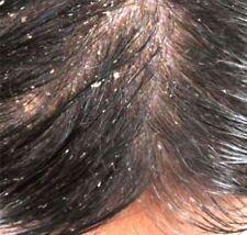 Fountain Jamaican Black Castor Oil Hair Food Dry Itchy Flaky Hair Bump Scalp Oil